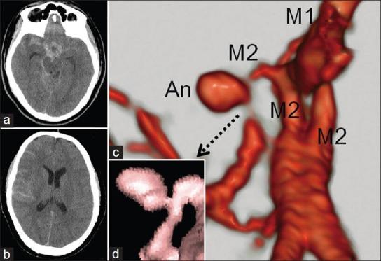 大脑中动脉无分支血管瘤引发蛛网膜下腔出血伴川崎病史一例