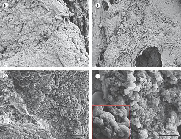 图7. 气管移植前(A.B)、去细胞化(C.D)、移植后1年(E.F)、4年(G、H)扫描电镜图像 患者呼吸道上皮能够完全再生,纤毛功能及粘膜清除功能正常。肺功能和咳嗽敏感性正常。随访期间未发现干细胞相关的畸胎瘤形成,也未检测到抗移植物抗体。 除了进行支气管镜检查住院,患者其余时间生活质量很好,日常活动及工作均可正常进行。 这一临床结果首次证实,组织工程学方法进行气管移植安全有效。