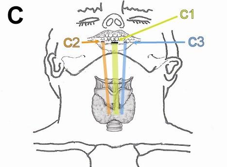 传统开放的甲状腺手术不可避免的要在人体颈部暴露