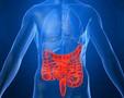 [DDW2013]炎症性肠病增加黑色素瘤的风险