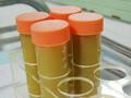 [DDW2013]更多证据显示粪菌移植可清除艰难梭菌