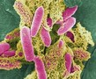 研究称肆虐欧美13国恶菌与艾滋肠毒同源