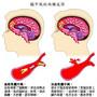 慢性肾脏病可能会增加中风危险