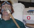 无创正压通气在AECOPD中的应用