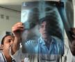 呼吸机相关性肺炎:胸片报告与灌洗结果仅40%吻合