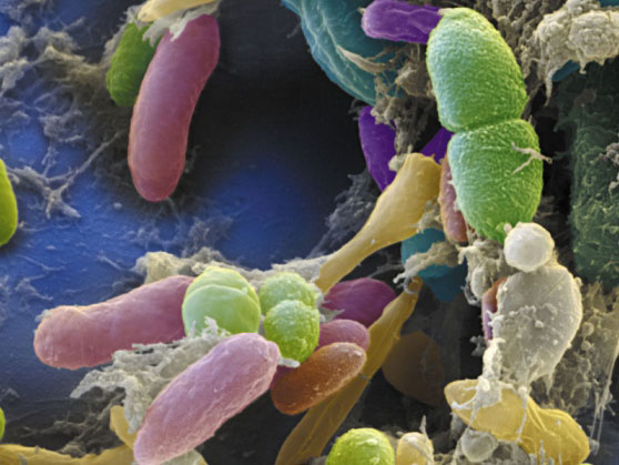 Nature:微生物群落研究未来走势