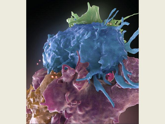 认识埃博拉,以及浩瀚的病毒世界