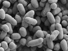 Science:肠道中的有益微生物如何抵抗炎症