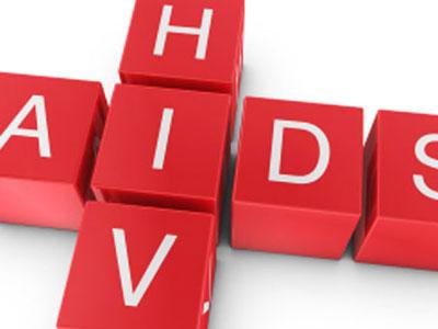 Cell:揭示潜伏艾滋病毒的匿身之处