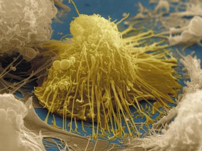 Nature:B淋巴细胞发现50年