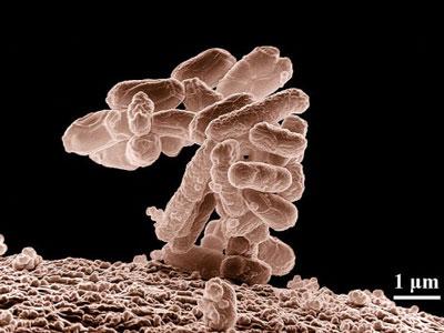 合成细菌无创检测糖尿病和癌症