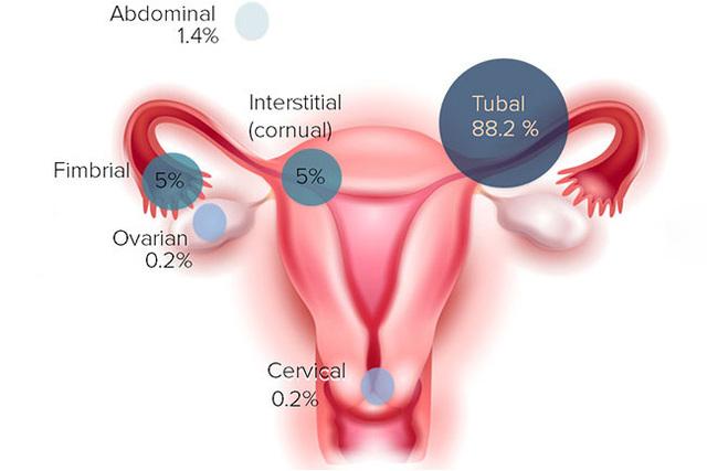 妇产科妇女检查图片_引起妊娠期妇女腹痛的 10 大原因 --生命经纬