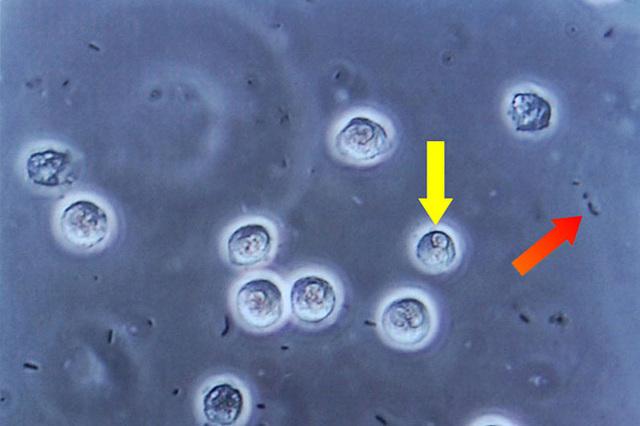 镜检白细胞_尿沉渣检查白细胞500-