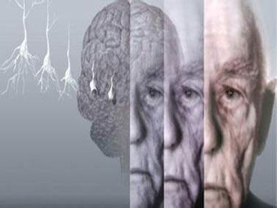 治疗阿尔茨海默氏症的新方法