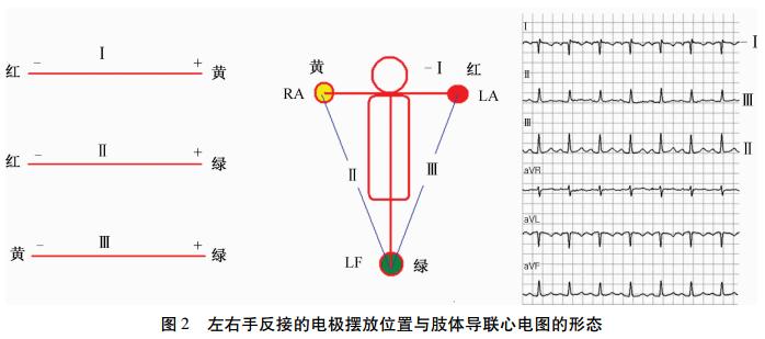 同相比例运算电路波形图