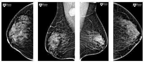 图 1 双侧乳腺钼靶图像   图 2 超声检查所示右侧腋窝肿大淋巴结   影像
