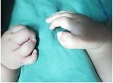 先天性寨卡病毒综合征伴有的关节挛缩