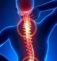 强直性脊柱炎的目标治疗时代到来了吗