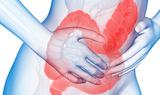NEJM:关节炎治疗药物显著有效用于克罗恩病