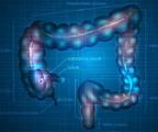 林奇综合征:结直肠的难隐之殇