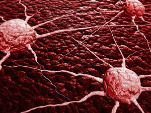 受Google算法启发,科学家找到追踪癌细胞扩散的方法