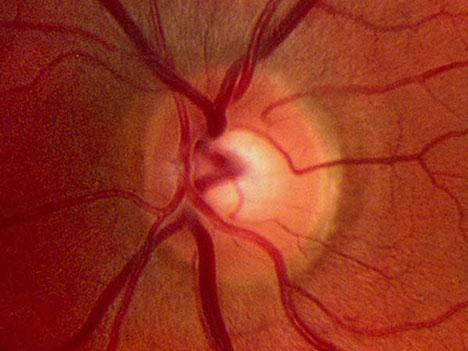 """治愈失明:3D打印让视网膜细胞精准""""站队"""""""