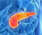 胰腺癌手术新思路