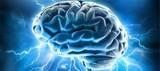 Neurology:新方法可有效治疗抗NMDA受体脑炎