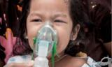 哮喘儿童更容易肥胖