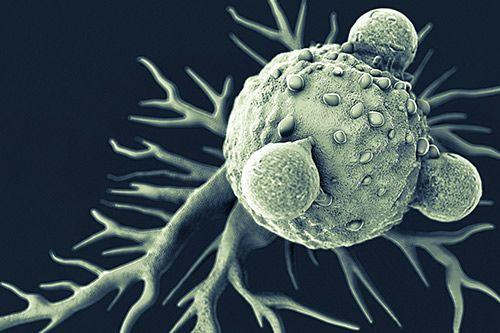细胞疗法治脑癌成效显著