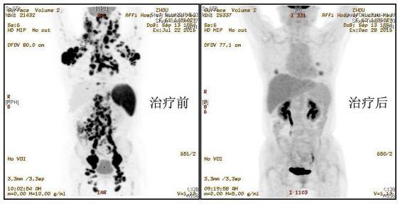 首例多靶点、多类型CAR-T细胞序贯治疗晚期恶性淋巴瘤获得成功