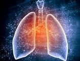 院前NSAIDs使用延长胸膜-肺感染患者住院时间