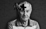 阿尔茨海默病的MR功能成像研究进展