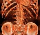 血管内超声/光声联合成像研究进展