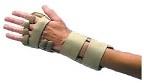 类风湿关节炎:关节骨质侵蚀不同于关节间隙狭窄