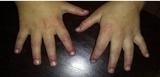儿童皮肌炎的临床表现
