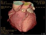 冠状动脉CT血管造影管腔内衰减梯度的研究进展