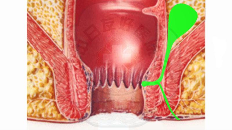 虚实结合挂线术治疗高位肛瘘