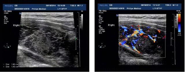 图3桥本式甲状腺炎.png