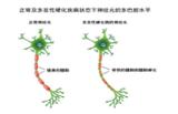 干细胞移植可阻止多发性硬化进展