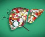要点速览│血液病患者药物性肝损伤的预防和治疗(2016版)