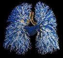 机化性肺炎的临床,组织学,及CT特点