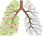 从临床、组织学及CT特点诊断寻常型间质性肺炎(UIP)