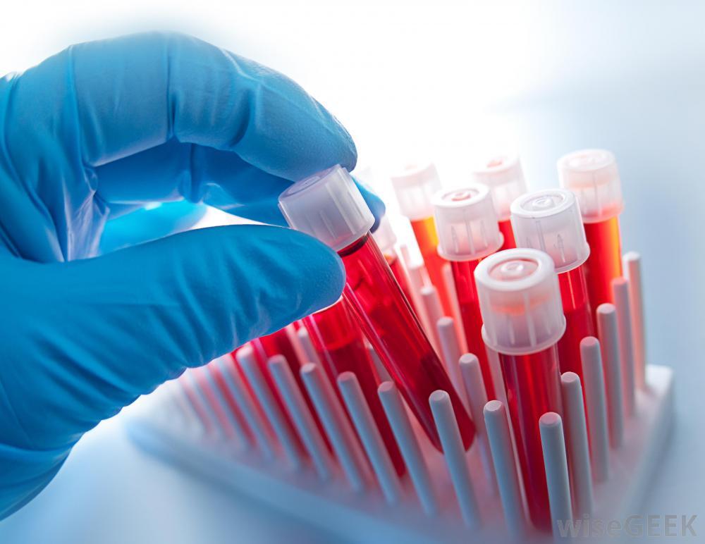 4 月血液核心期刊 Blood、Leukemia、AJH、BJH 资讯速递