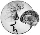 烟雾病的磁共振成像研究进展