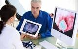 前列腺特异性膜抗原靶向分子探针在前列腺癌诊断及治疗中的应用