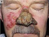 [NEJM]痂皮病灶覆盖整个鼻子,原来是这个病……