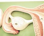 卵巢癌确诊前饮食健康,确诊后生存可能更好