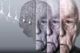 阿尔茨海默病和轻度认知功能损害的功能性影像研究概况