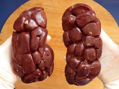 肾脏疾病研究进展一览